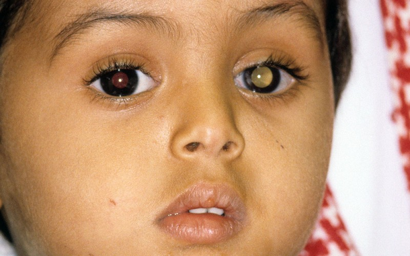 Image result for Retinoblastoma