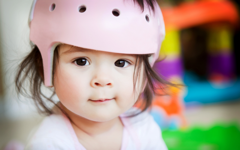 How to recognize positional plagiocephaly