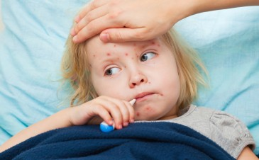 Should we avoid exposing our children to chickenpox?