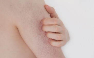 Keratosis pilaris: identification and treatment
