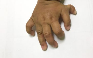 Types of finger and toe deformities in infants and children